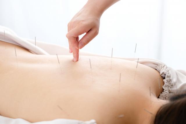 一般鍼灸治療